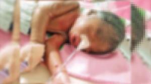 ਪੰਜਾਬ ਦੇ ਇਸ ਜ਼ਿਲ੍ਹੇ 'ਚ ਪੈਦਾ ਹੋਇਆ 'ਪਲਾਸਟਿਕ ਬੇਬੀ', ਜਿਸ ਦੀ ਸੱਪ ਵਾਂਗ ਉਤਰਦੀ ਹੈ ਚਮੜੀ